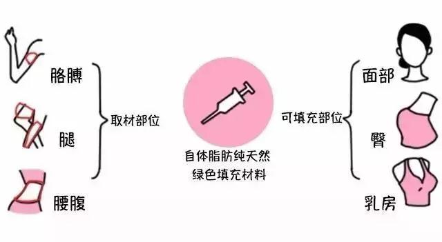 人体脂肪_健康 健康常识    利用进口提纯技术,从人体自身抽取脂肪细胞,经过滤
